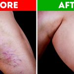 Natural Ways Of Eradicating Varicose Veins